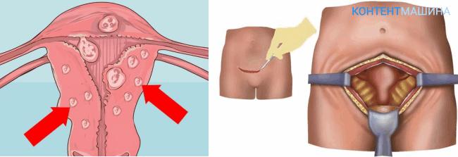 удаление миомы матки - подготовка к операции