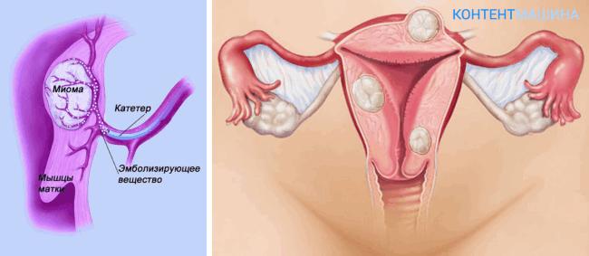 удаление миомы матки - увеличенное изображение