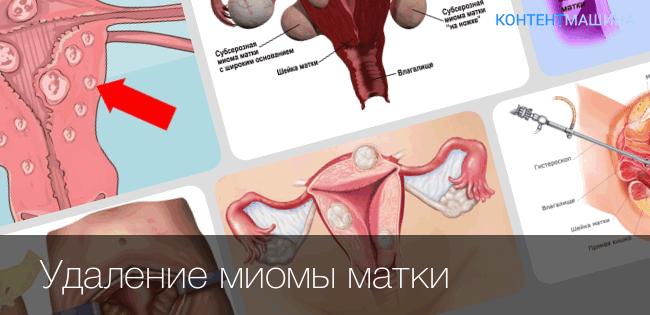 Подготовка к операции по удалению миомы матки