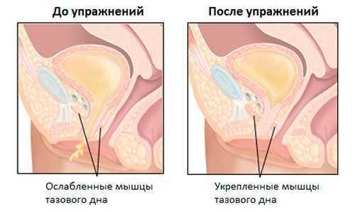 после операции по удалению матки