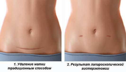 способы проведения гистерэктомии