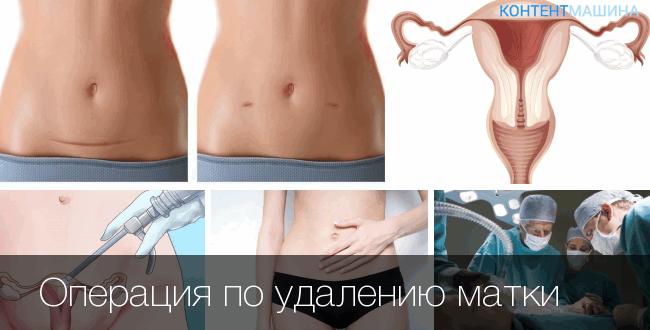 udaleniyu matki 650x330 - Удаление матки: причины, методы, реабилитация, последствия