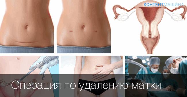 Удаление матки (гистерэктомия), экстирпация матки – показания, методы удаления матки. Жизнь после удаления матки, последствия для организма