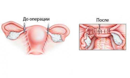 До операции удаления матки и после