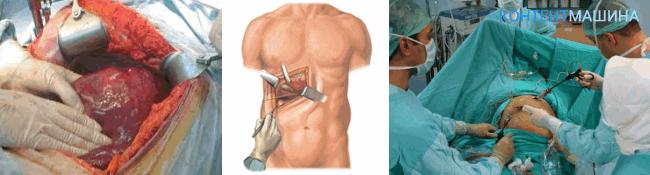 Полостная операция по удалению желчного пузыря