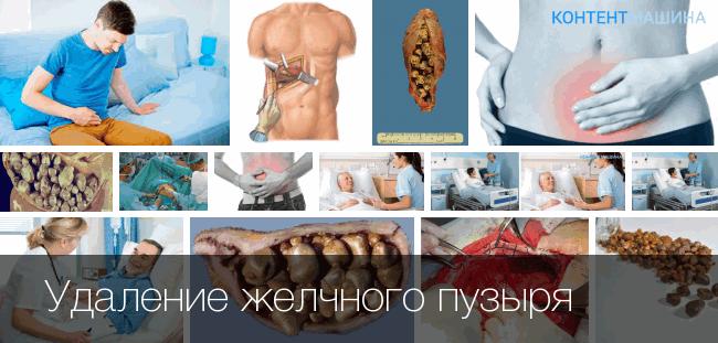 Операция полостная по удалению желчного пузыря видео — Лечим печень