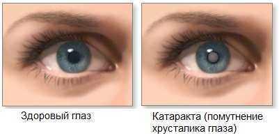 Замена хрусталика глаза - сравнение здорового и пораженного глаза