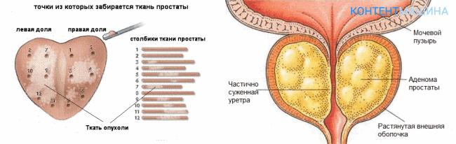 Показания к операции биопсии простаты