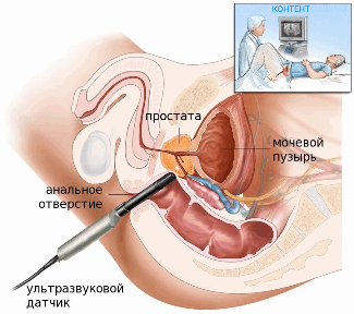 Мультифокальная трансректальная биопсия предстательной железы