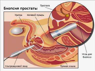 Трансперинеальная биопсия простаты