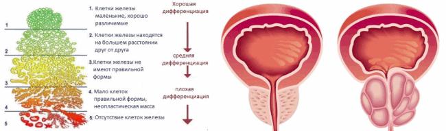Результат биопсии предстательной железы