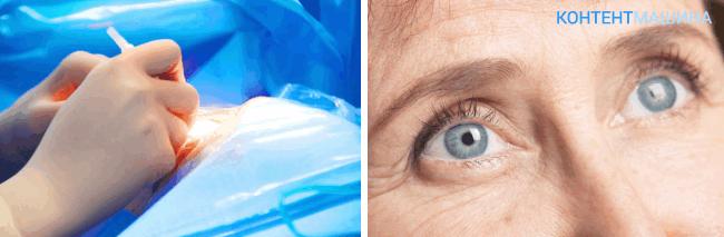 Замена хрусталика глаза - ограничения