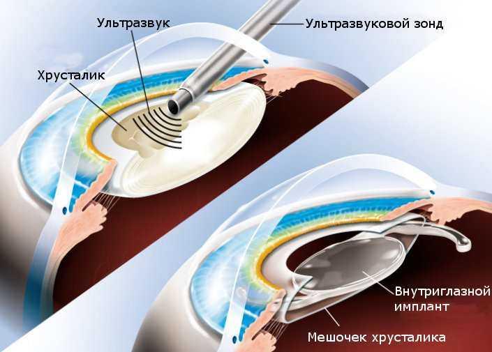 Как выполняется замена хрусталика глаза