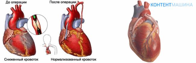 Аортокоронарное шунтирование сосудов сердца