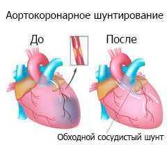 Аортокоронарное шунтирование до и после