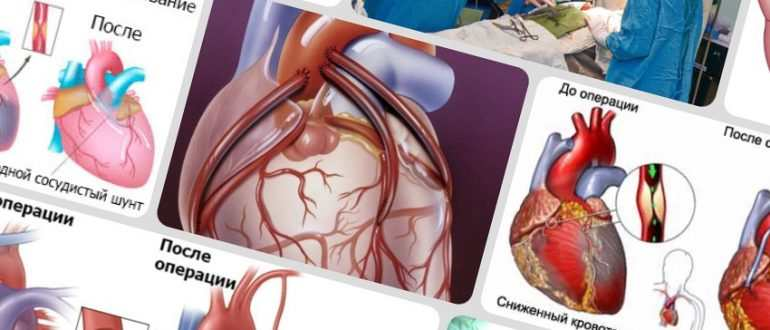 shuntirovanie sosudov serdca 770x330 - Аортокоронарное шунтирование сосудов сердца - самая частая кардиооперация