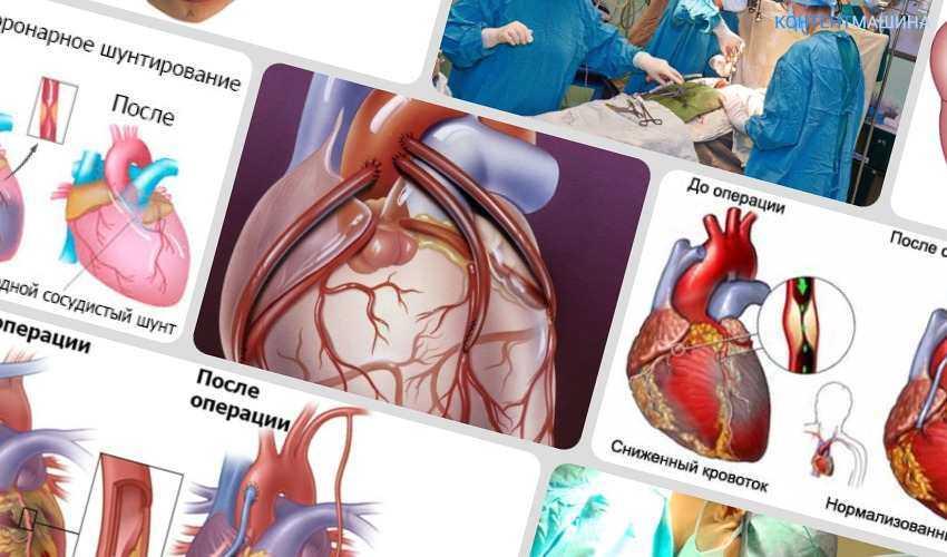 Шунтирование сердца что это такое? Аортокоронарное шунтирование