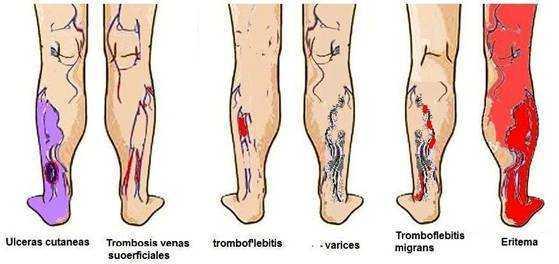 ангиопластика на сосудах ног