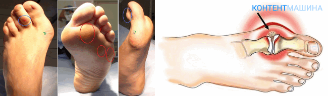 unnamed file 20 - Операция по удалению гигромы: подготовка, способы удаления, реабилитация, осложнения