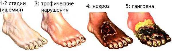 ампутация нижних конечностей - стадии поражения органов