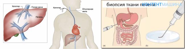 как производится печеночная биопсия