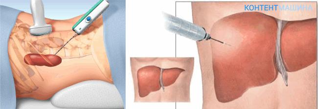 Инцизионная биопсия печени
