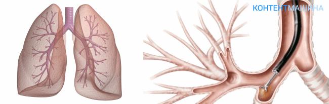 unnamed file 33 - Биопсия лёгких: виды, что такое и как её делают?