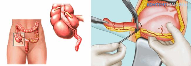 Аппендэктомия - операция по удалению аппендицита