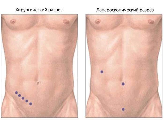 Аппендэктомия - выполняемые разрезы