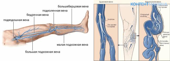 расположение вен на ноге