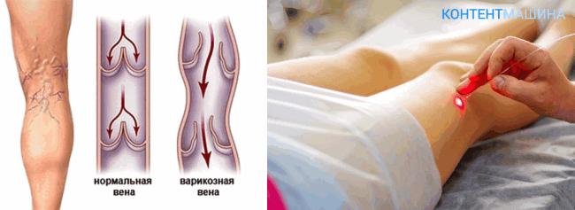 Лазерная коагуляция вен