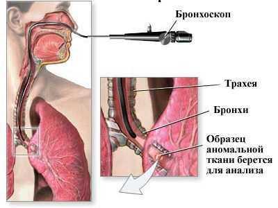 Биопсия лёгких: виды, что такое и как её делают?