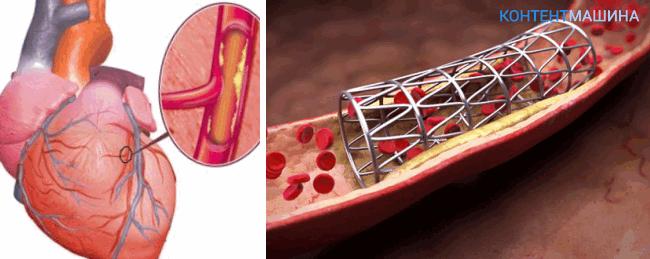 Ангиопластика и стентирование коронарных артерий