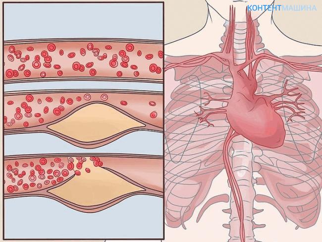 Баллонная ангиопластика сосудов сердца