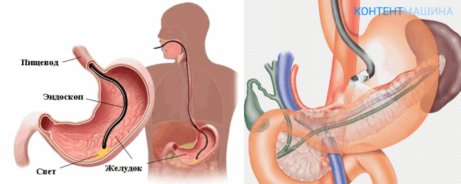 Проведение биопсии желудка