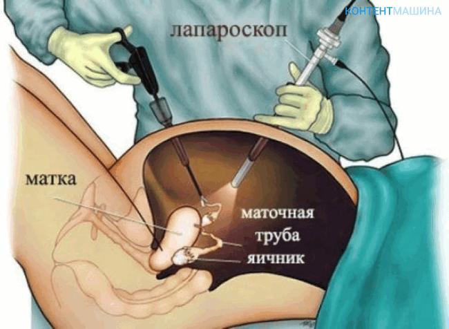 unnamed file 62 - Лапароскопия при поликистозе яичников - показания методы и возможные осложнения