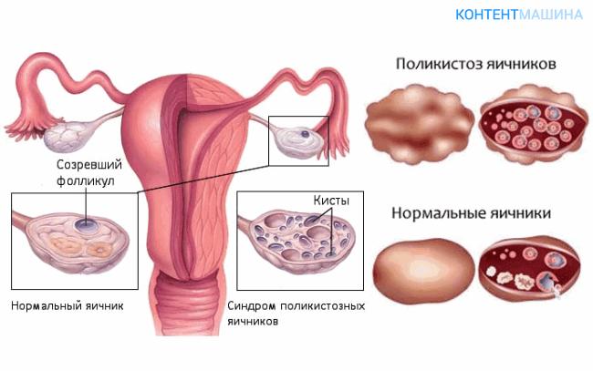 unnamed file 63 - Лапароскопия при поликистозе яичников - показания методы и возможные осложнения