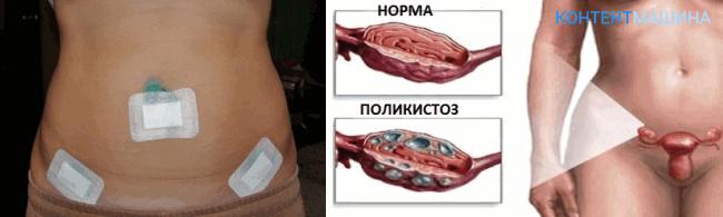 unnamed file 64 - Лапароскопия при поликистозе яичников - показания методы и возможные осложнения