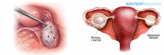 unnamed file 65 - Лапароскопия при поликистозе яичников - показания методы и возможные осложнения