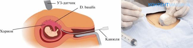 Биопсия ворсин хориона последствия