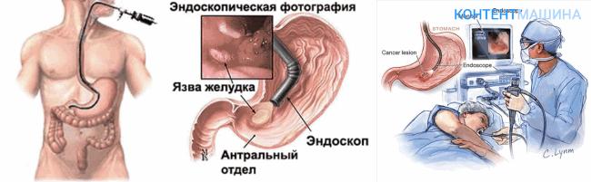 Исследование желудка