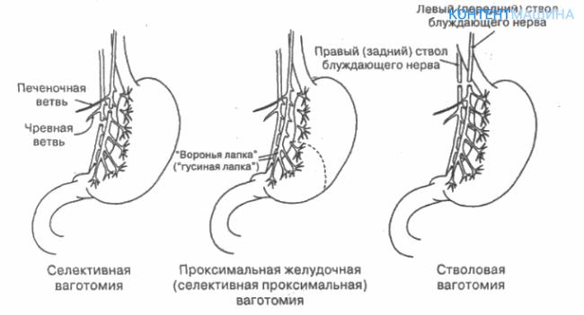 основные виды ваготомии