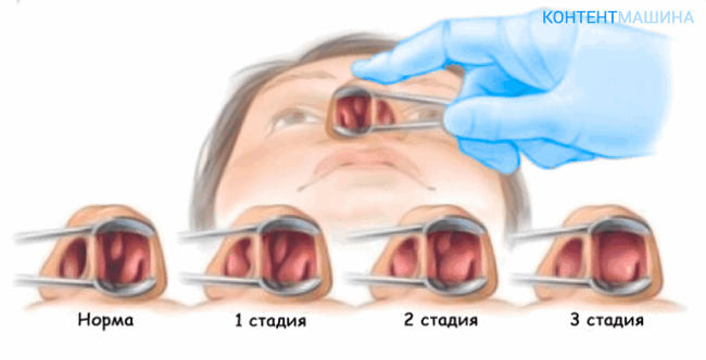 полипы в носу - стадии развития