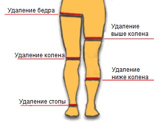 Техника проведения ампутации нижних конечностей