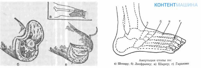 Иссечение стопы ноги
