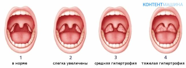 Аденотомия - операция по удалению аденоидов