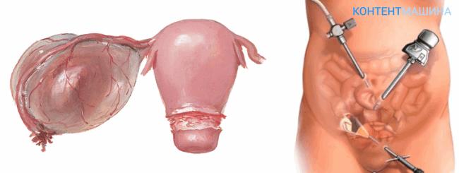 Киста яичника - как выглядит патология