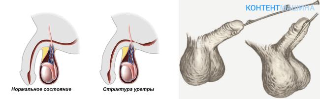 Бужирование уретры у мужчин