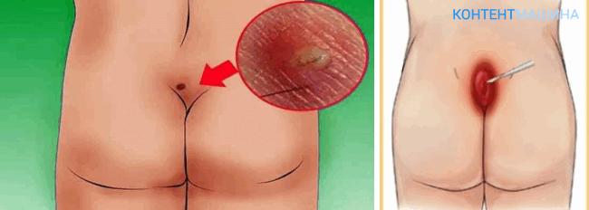 Лечение кисты копчика с помощью удаления