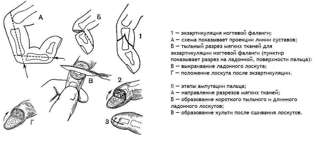 Ампутация пальца на руке - подробная схема